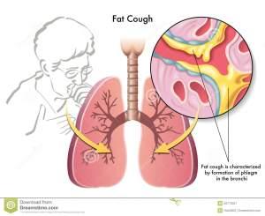fat-cough-28713027
