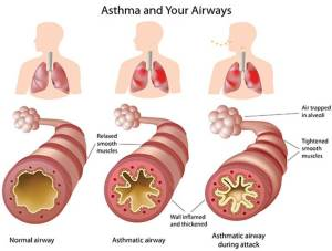 asthma-and-your-airways